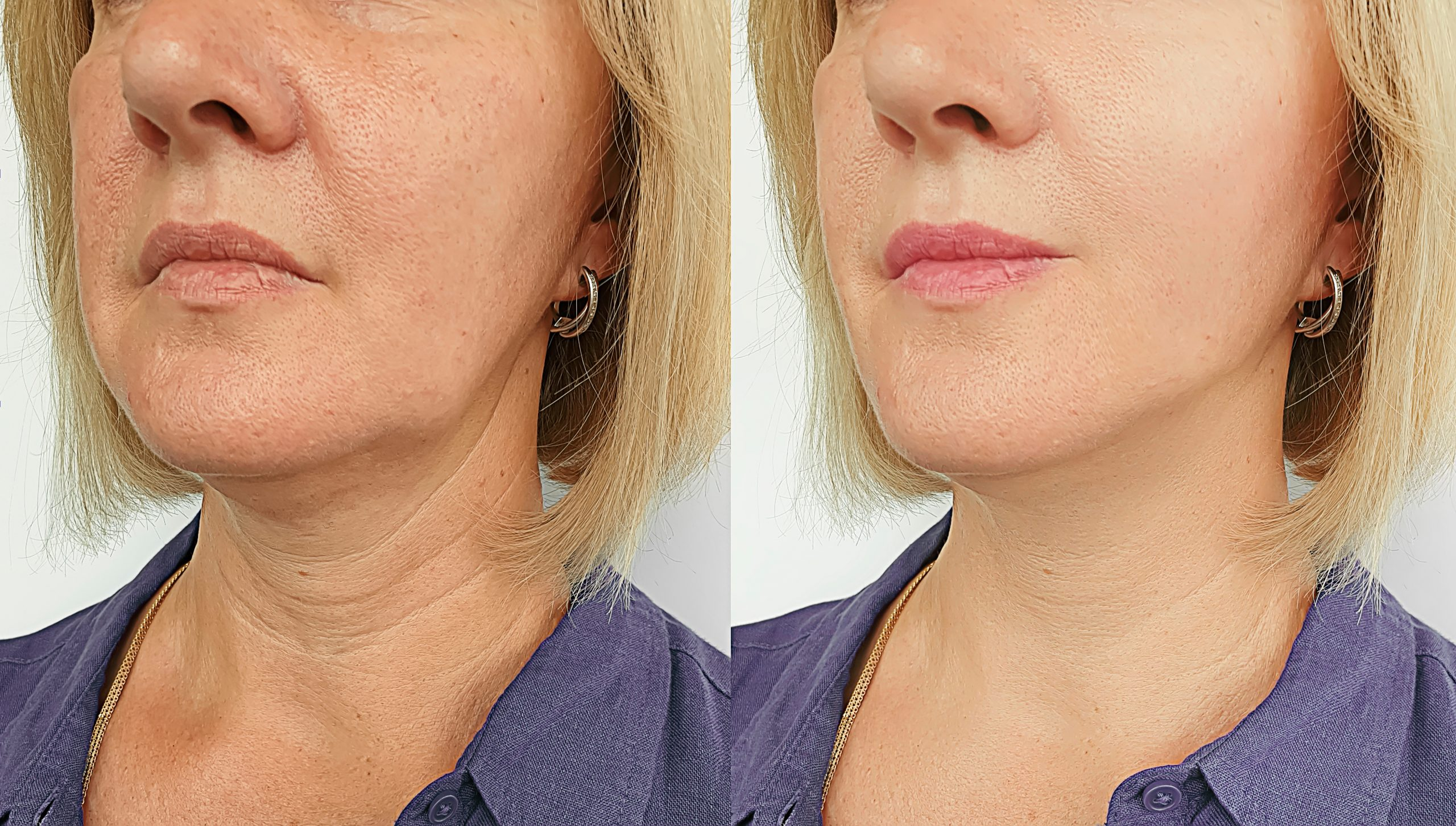 Botox And Fillers Before After