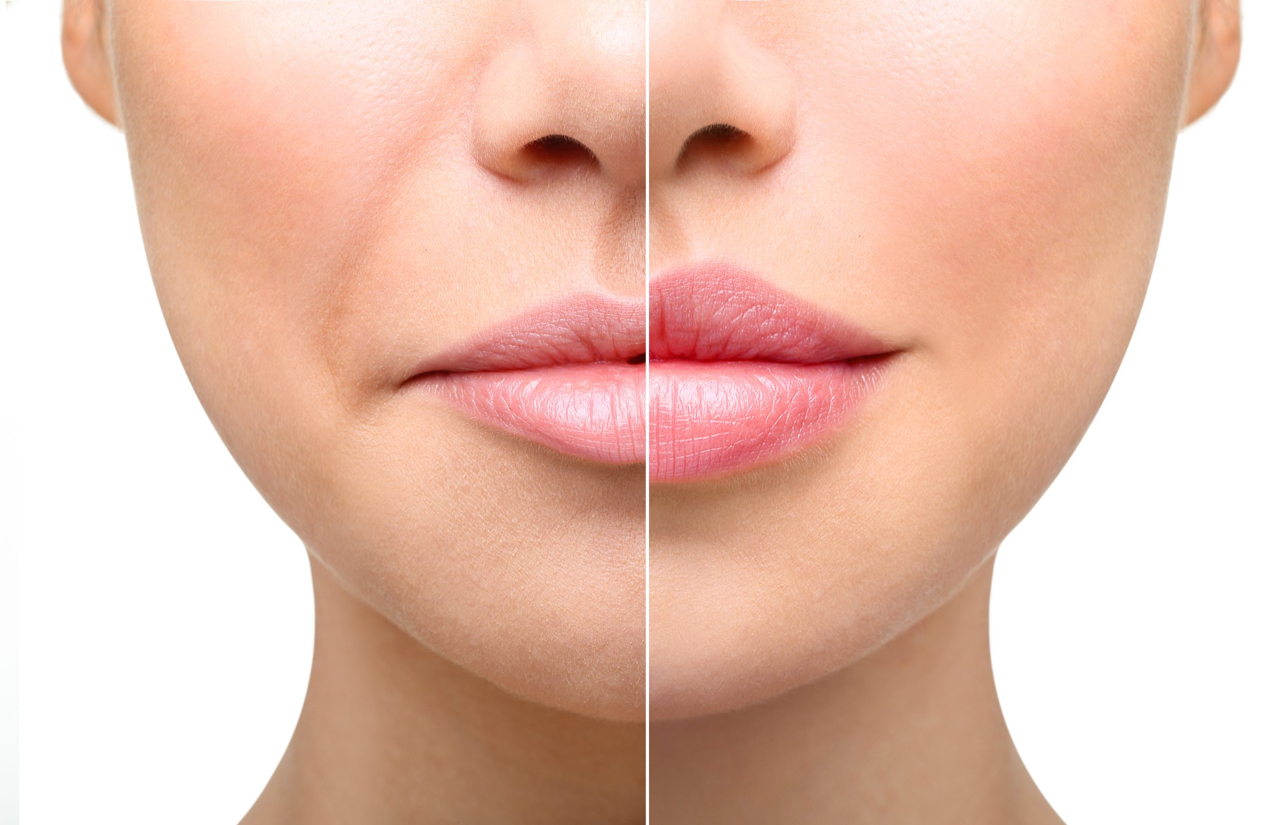 Juvederm Lips Before After