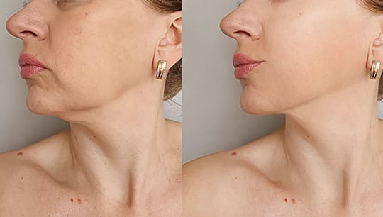 lower chin wrinkles and folds