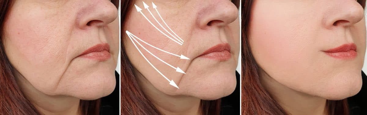 Woman, Face, Wrinkles, After, Treatment